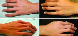 Hand Rejuvenation with 2 1.5 cc Syringes of Radiesse®