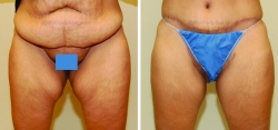Inner Thigh Lift Incision placed in Crease of Groin