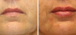Lip Augmentation with 1 Syringe of JUVÉDERM® Ultra XC