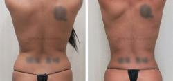 Liposuction of Upper & Lower Back