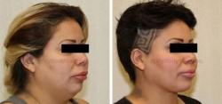Liposuction of Neck - Tightening of Platysma Muscle