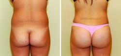 Liposuction of Abdomen - Liposuction of Flanks - Bilateral Fat Transfer to Buttocks