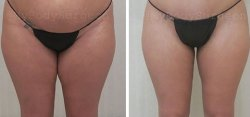 Liposuction of the Inner Thighs