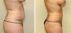 Liposuction of Abdomen - Liposuction of Flanks