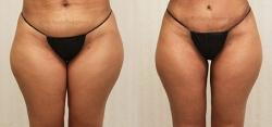 Liposuction Inner Thighs