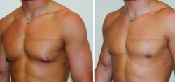 Gynecomastia Reduction Liposuction of Chest