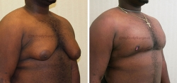 Gynecomastia Reduction - Liposuction of Chest