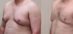 Gynecomastia Reduction - Liposuction of Chest - Excision of Excess Breast Tissue