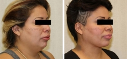 Liposuction of Neck - Tightening of Platysma Muscle