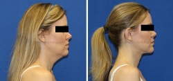 Neck Lift - Liposuction of Neck - Tightening of Platysma Muscle