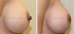 Bilateral Nipple Reduction