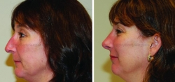 Rhinoplasty - Septoplasty