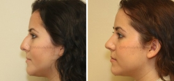 Rhinoplasty (note: Patient is still slightly swollen)