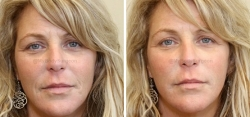 1 Syringe of JUVÉDERM® Ultra Plus XC Injected into Nasolabial Folds (smile lines).