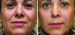2 Syringes of JUVÉDERM® Ultra Plus XC Injected into Nasolabial Folds (smile lines).