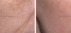 Medical Grade Skin Care to Treat Hyperpigmentation and Sun Damage (6 weeks after starting regimen)
