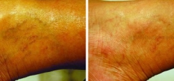 Spider Vein Treatment with CynoSure Laser (1 treatment)