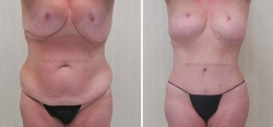 Abdominoplasty - Liposuction of Abdomen - Flanks - Pubis - Upper & Lower Back - Belly Button Revision