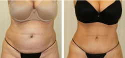 Abdominoplasty - Liposuction of Abdomen - Liposuction of Flanks - Liposuction Pubis - Belly Button Revision