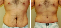 Abdominoplasty - Liposuction of Abdomen - Liposuction of Flanks - Belly Button Revision