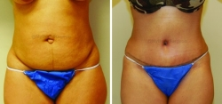Abdominoplasty - Liposuction of Abdomen - Liposuction of Flanks - Belly Button Revision - Liposuction of Inner & Outer Thighs