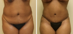 Abdominoplasty - Liposuction of Abdomen - Liposuction of Flanks- Belly Button Revision