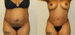 Abdominoplasty Full - Liposuction of Abdomen - Liposuction of Flanks - Liposuction Pubis - Belly Button Revision