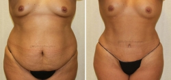Abdominoplasty - Liposuction of Abdomen - Liposuction of Flanks - Liposuction Pubis - Belly Button Revision Revision