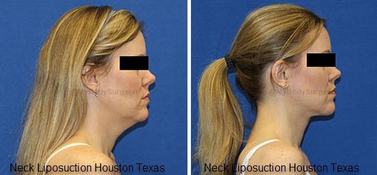 Neck Liposuction Houston Texas
